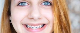 เทรนด์การจัดฟันที่ต้องใส่ใจ