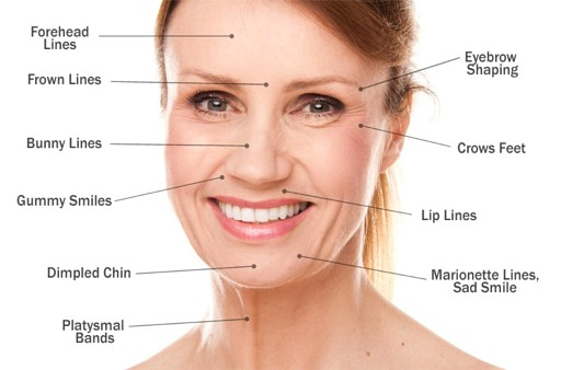 Areas treated for wrinkle reduction