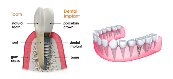 Picture of how a dental implant is done