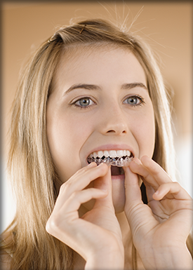 Woman inserting Invisalign clear brace
