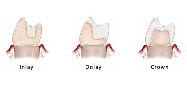 Types of fillings: inlays, onlays and crowns