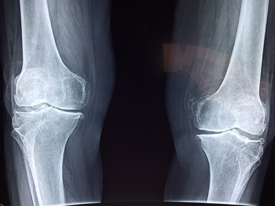 Florida Knee Injury Lawyer | Delray Beach | 33444 | 33445 | 33445 | 33448 | 33484 | 33482 | 33483