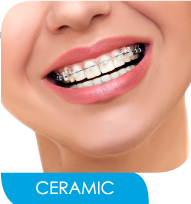 Ceramic or Clear Braces