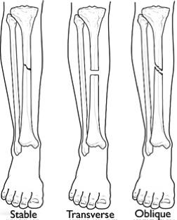 Knee Fracture Treatment Amp Management Precision Joint