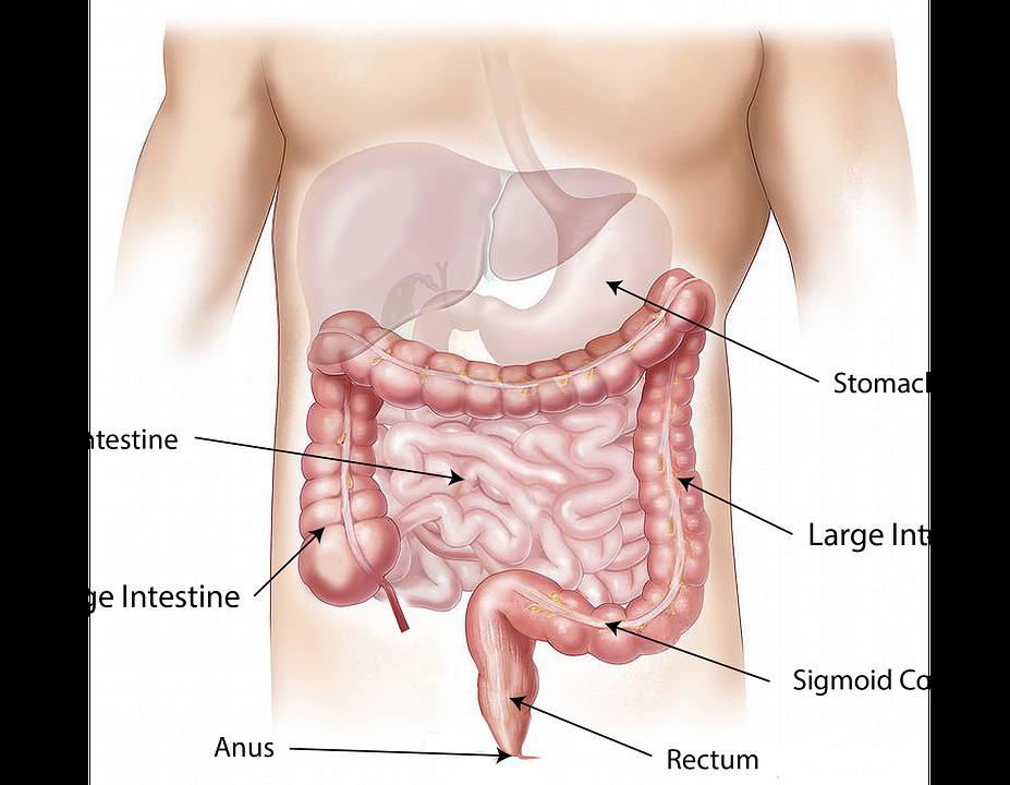 סרטן המעי הגס – תגליות מפתיעות