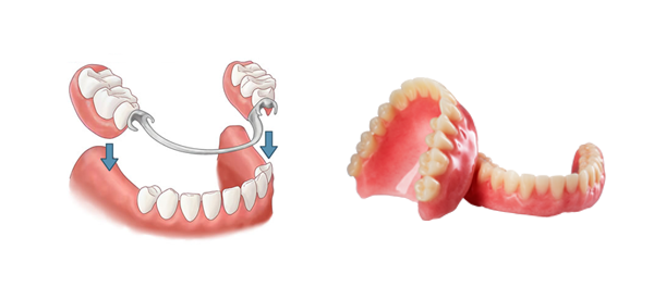 Picture of Full & Partial Dentures