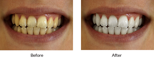 Before & After Results with KoR Whitening