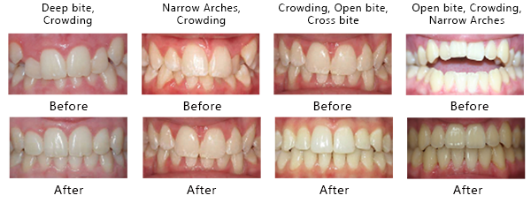 Invisalign Before and After Results