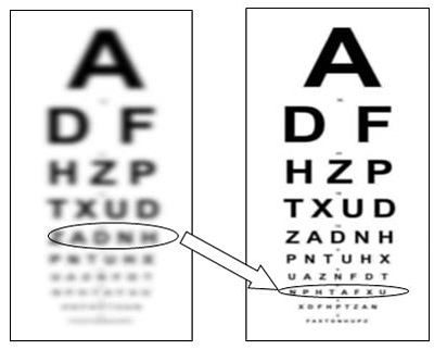 Read Without Glasses Cure Presbyopia After 40 Revitalvision