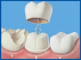 Miford Dentists Dental Crown Example