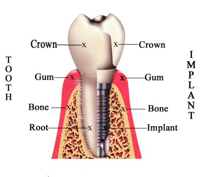 Dental Implant Milford Dentists