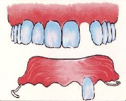 Miford Dentist Denture Example