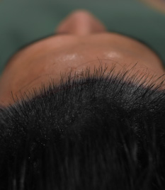 Hair Restoration,Bald Hair,Hair Loss Treatment
