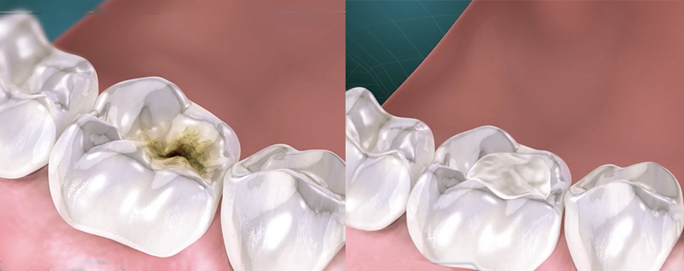 picture showing a tooth with  a cavity and the same tooth with the cavity removed and a filling applied
